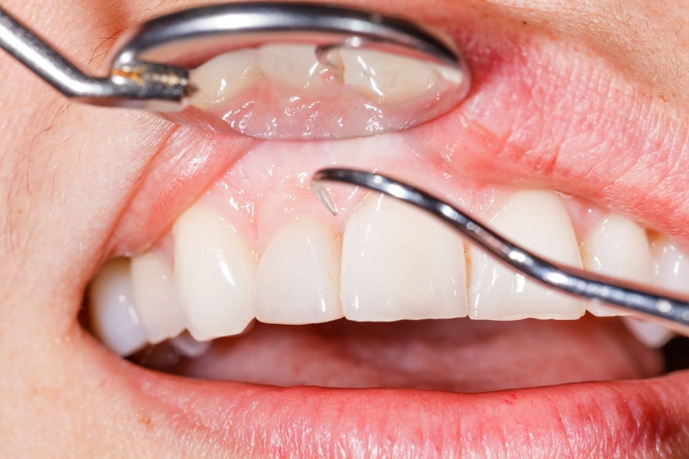 gum disease and teeth cleaning image