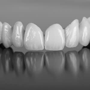 DentalBridgeGridImage
