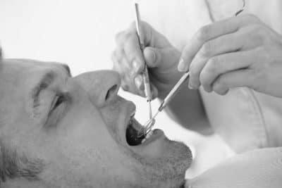 Dental Fillings Image