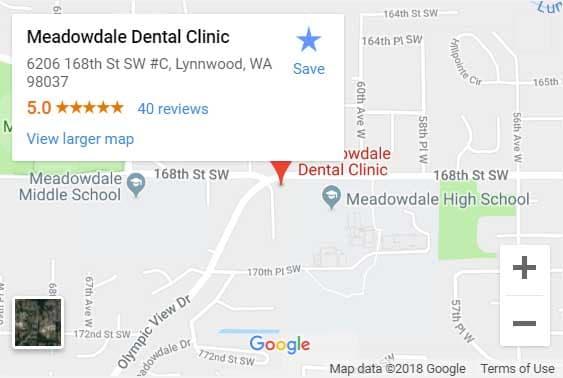 Dentist Lynnwood WA Lynnwood Family & Emergency Dentist